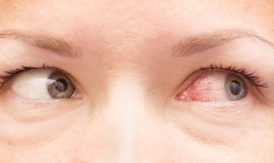 Illustration of Hot Eyes And Red Veins Appear?
