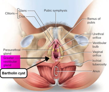 Illustration of Why Does It Contain Blood Bartholin Cysts And Not Phlegm?