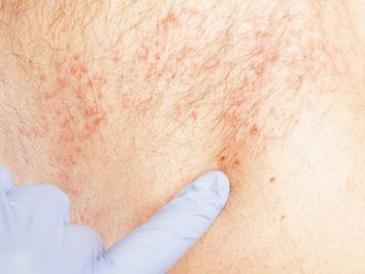 Illustration of Should I Take Acyclovir Again When Chicken Pox Does Not Heal?