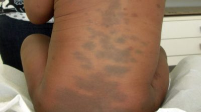 Illustration of Birthmarks Such As Black Skin On The Legs, Thighs And Face Will Decrease?