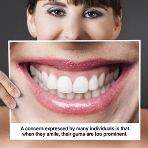 Illustration of Does Stirrup Pairs Can Fix Excessive Gums (gummy Smile)?