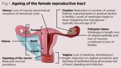 Illustration of The Age Of The Womb Is Still Young But The Stomach Has Bulged?