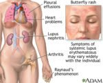 What Type Of Lupus Is Characterized By Frequent Nausea, And Dizziness?