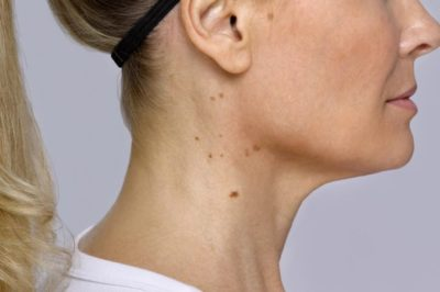 Illustration of Neck Skin To Jaw Bump Into Small And Itchy?
