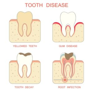 Illustration of Toothache That Is Accompanied By Swelling Of The Gums And Chin?