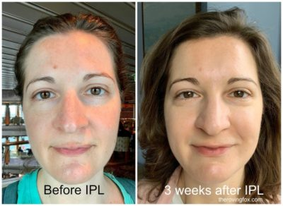 Illustration of Wearing Sunscreen After IPL?