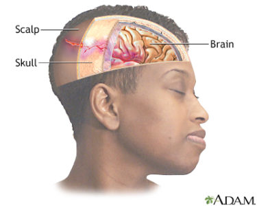 Illustration of Lump On The Head Due To Collision.?