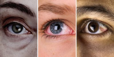 Illustration of Does Healthy Living Affect Eye Health?