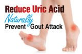 Solution To Overcome Swollen Feet Due To Gout?