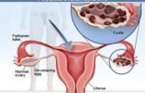 Is There Any Effect Of Delaying Uterine Cyst Surgery In A 24-year-old Woman?