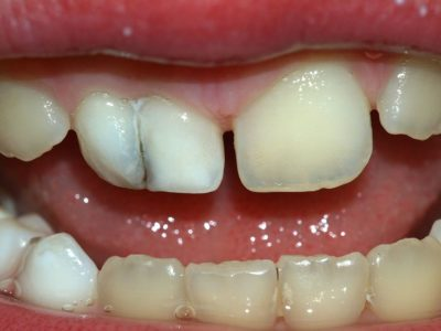 Illustration of Can Teeth Get Attached Together?
