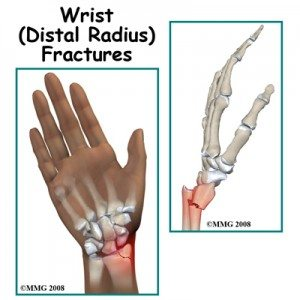 Illustration of Limited Arm Wrist, Crooked, Bump And Pain After Fracture?