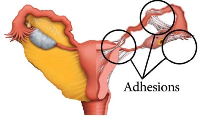 Illustration of How To Cure Adhesions In Fimbria?