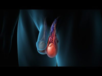 Illustration of The Right Scrotal Swollen After Varicocele Surgery 10 Years Ago?