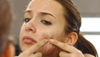Illustration of Pimples On The Face, Pores Enlarged And Dull After Stopping Using Face Cream?