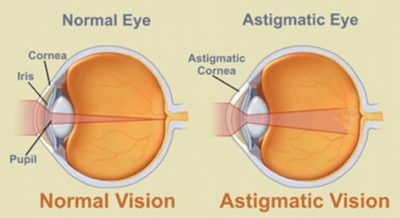 Illustration of Both Eyes Have Cylindrical Conditions?