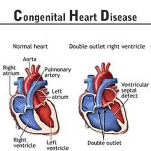 Illustration of How To Cure Congenital Heart Disease?