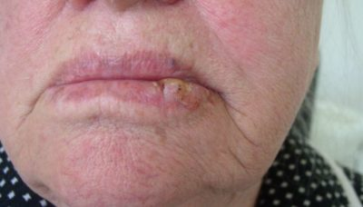 Illustration of Lips Thicken As If There Are Lumps And Burning Skin?