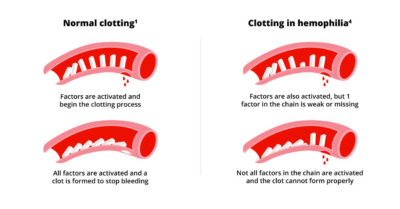 Illustration of Clotting Time Is Slower Than Normal?