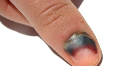 Illustration of Nail Pinched The Door To Become Swollen And Bleeding Inside?