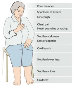 Illustration of Chest Tightness Accompanied By Cold Feet?