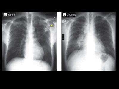 Illustration of How To Determine Pulmonary TB Is Completely Cured If There Are Still Complaints Of Chest Pain?
