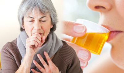 Illustration of Can Cough Medicine Be Stopped If There Are No Complaints Of Cough?