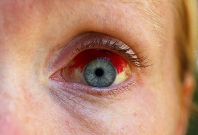 Illustration of Child's Eyeball Has Red Spots After Being Punctured By A Straw?