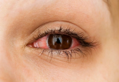 Illustration of Solution To Overcome The Red Eye After Falling Asleep Using Contact Lenses?