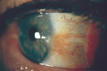 Illustration of Meat Grows On The Inside Of The Eye?