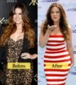 Drastic Weight Loss When Using KB Injections 3 Months?