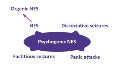 Illustration of Can Epilepsy Treatment Cause Symptoms Of Psychiatric Disorders?