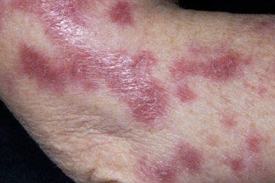 Illustration of A Rash On The Facial Skin During TB Injection Treatment?