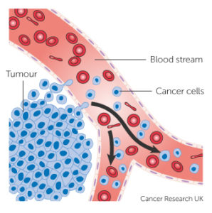 Illustration of Spread Of Cancer?