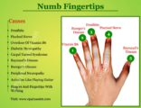 Numbness In The Fingers To The Wrists During Activities?