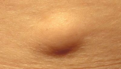 Illustration of Painless Lumps In The Left Temple That Reappear After Surgery?