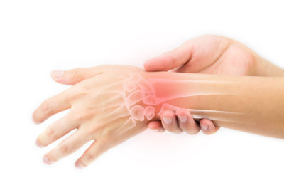 Illustration of Pain In The Wrist That Often Recurs?