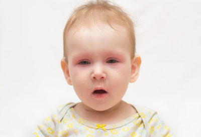 Illustration of Babies 7 Months Of Age Are Slimy During Colds?