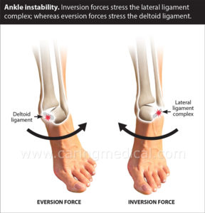 Illustration of The Solution To Overcome Pain In The Ankle Or Ankle?