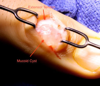 Illustration of Surgical Procedure In Ganglion Disease?