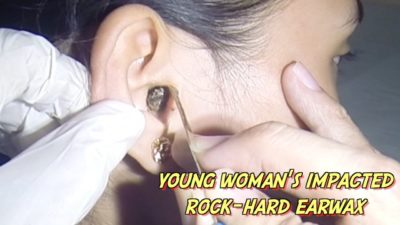 Illustration of How To Deal With Hardened Earwax?