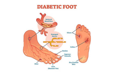 Illustration of Solution Boils In The Foot Area In People With Diabetes Mellitus?