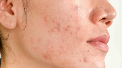 Illustration of How To Deal With Acne And Scars?
