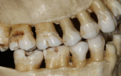Illustration of Why Do Upper And Lower Molars Hurt?