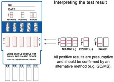 Illustration of The Testpack Results Are Positive But The Lab Urine Test Is Negative Because There Are Myomas?