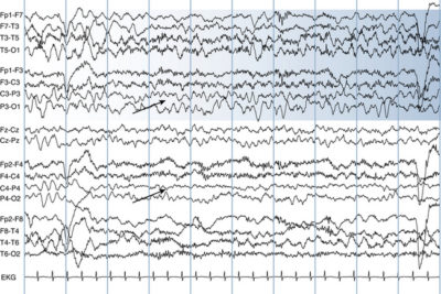 Illustration of Abnormal EEG Lll: Slowing In The Left Temporal And Epileptifrom Activity In The Left Temporal?