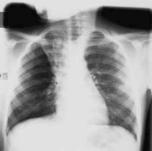 Illustration of X-rays Are Necessary When Coughing In Children?