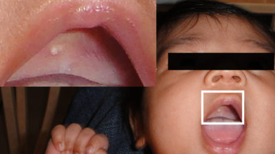 Illustration of What Causes White Nodules On The Baby's Lips?