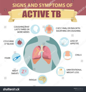 Illustration of What Are The Symptoms Of Active Pulmonary Tuberculosis Disease That Has Expanded?