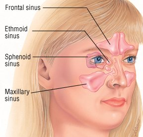 Illustration of Can Sinusitis Affect Pain In The Eyes, Head And Teeth?